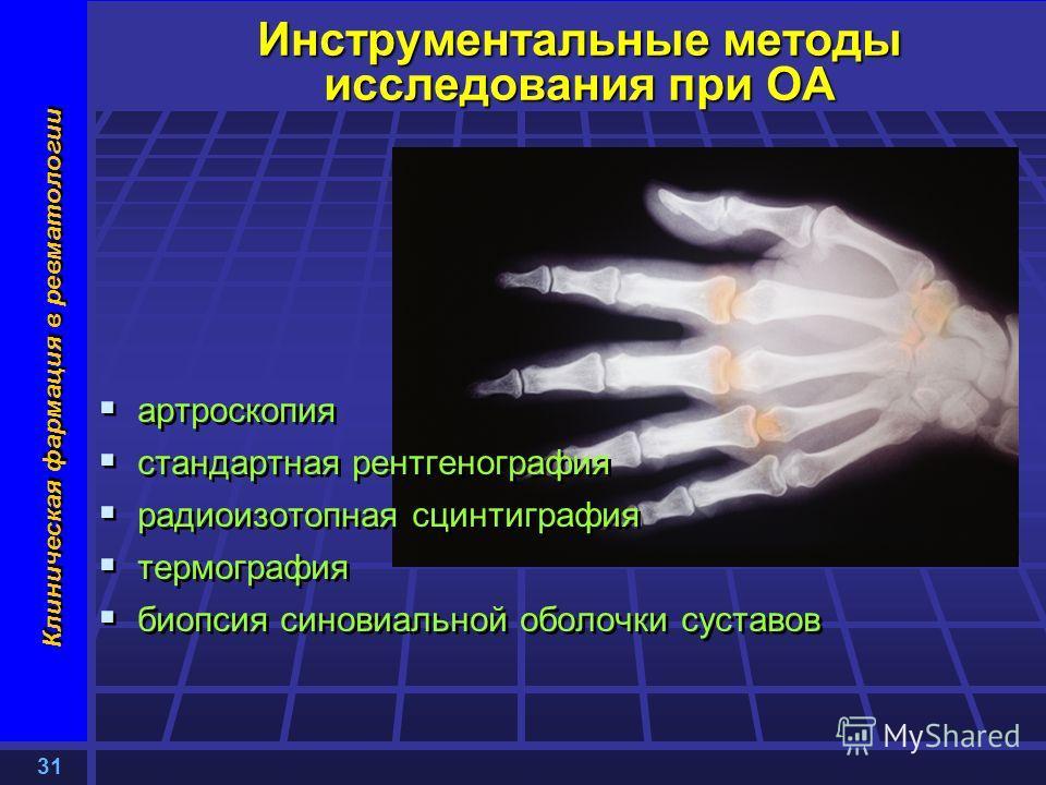 31 Клиническая фармация в ревматологии Инструментальные методы исследования при ОА артроскопия стандартная рентгенография радиоизотопная сцинтиграфия термография биопсия синовиальной оболочки суставов артроскопия стандартная рентгенография радиоизото