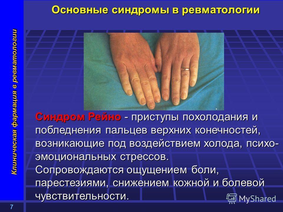7 Клиническая фармация в ревматологии Основные синдромы в ревматологии Синдром Рейно - приступы похолодания и побледнения пальцев верхних конечностей, возникающие под воздействием холода, психо- эмоциональных стрессов. Сопровождаются ощущением боли,
