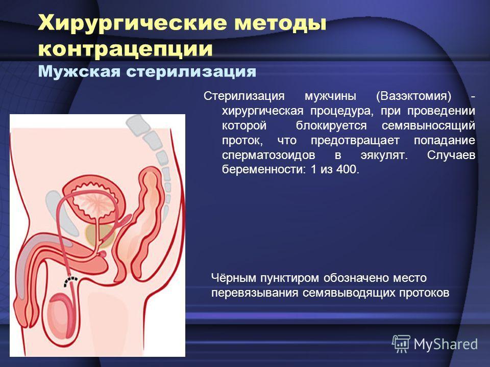 Хирургические методы контрацепции Мужская стерилизация Стерилизация мужчины (Вазэктомия) - хирургическая процедура, при проведении которой блокируется семявыносящий проток, что предотвращает попадание сперматозоидов в эякулят. Случаев беременности: 1