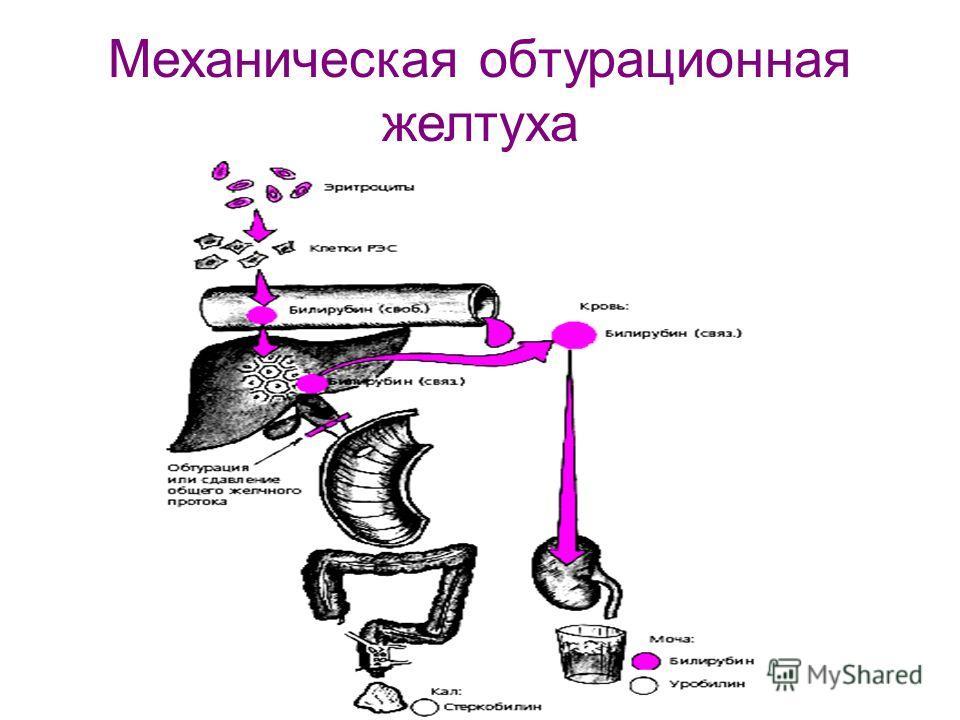 Механическая обтурационная желтуха