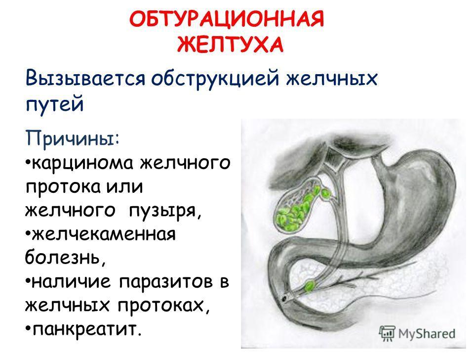 Вызывается обструкцией желчных путей ОБТУРАЦИОННАЯ ЖЕЛТУХА Причины: карцинома желчного протока или желчного пузыря, желчекаменная болезнь, наличие паразитов в желчных протоках, панкреатит.