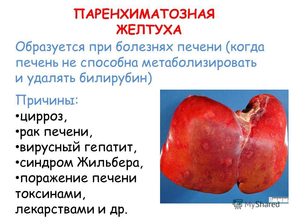 ПАРЕНХИМАТОЗНАЯ ЖЕЛТУХА Образуется при болезнях печени (когда печень не способна метаболизировать и удалять билирубин) Причины: цирроз, рак печени, вирусный гепатит, синдром Жильбера, поражение печени токсинами, лекарствами и др.