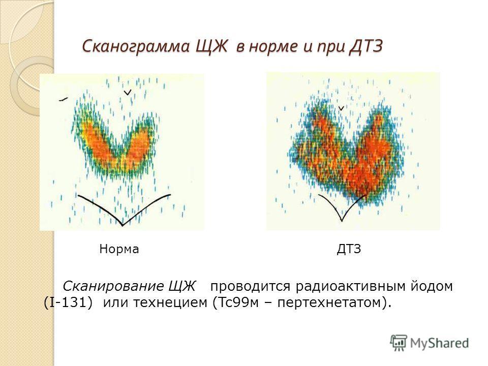 Сканограмма ЩЖ в норме и при ДТЗ Сканирование ЩЖ проводится радиоактивным йодом (I-131) или технецием (Tc99 м – пертехнетатом). Норма ДТЗ