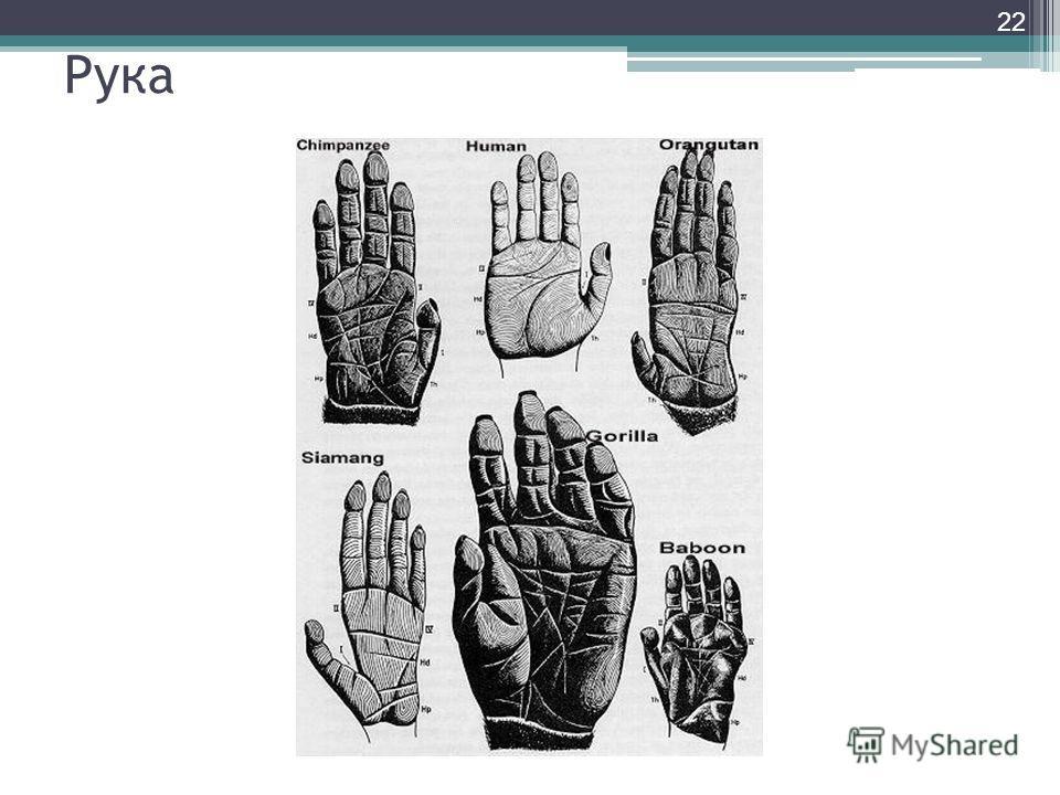 Рука 22