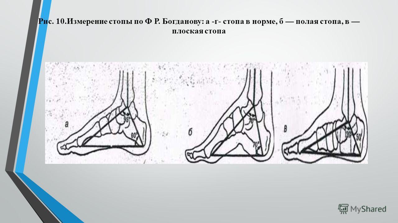 Рис. 10. Измерение стопы по Ф Р. Богданову: а -г- стопа в норме, б полая стопа, в плоская стопа