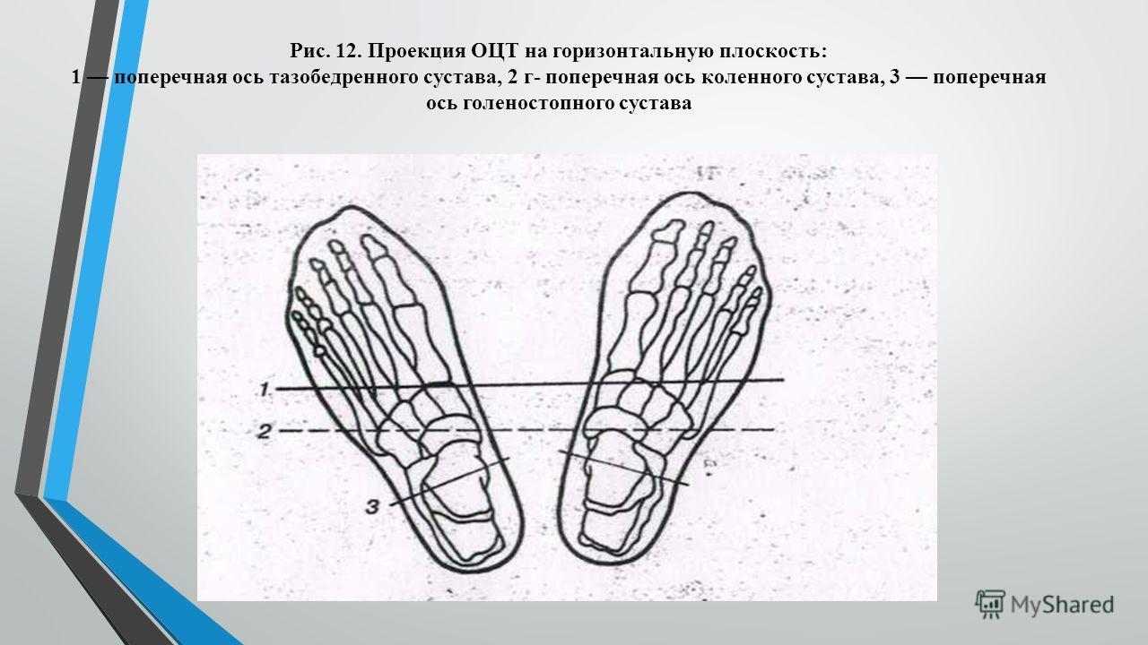 Рис. 12. Проекция ОЦТ на горизонтальную плоскость: 1 поперечная ось тазобедренного сустава, 2 г- поперечная ось коленного сустава, 3 поперечная ось голеностопного сустава