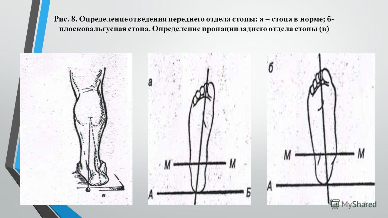 Рис. 8. Определение отведения переднего отдела стопы: а – стопа в норме; б- плосковальгусная стопа. Определение пронации заднего отдела стопы (в)