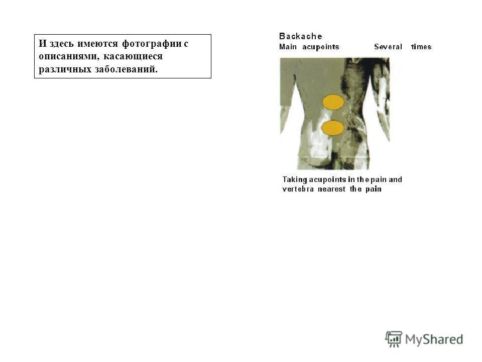 И здесь имеются фотографии с описаниями, касающиеся различных заболеваний.