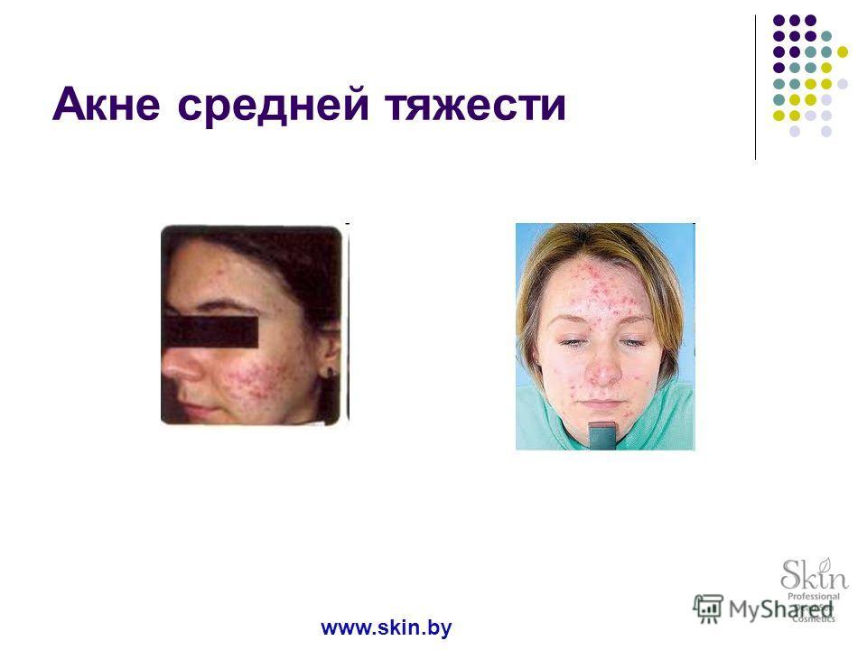 Акне средней тяжести www.skin.by