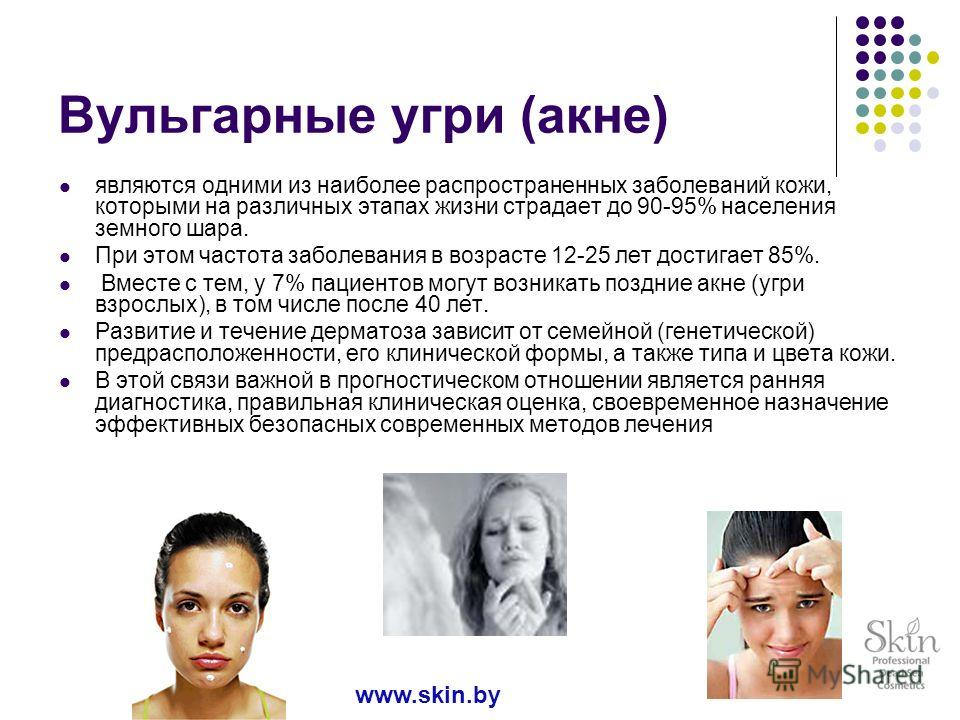 Вульгарные угри (акне) являются одними из наиболее распространенных заболеваний кожи, которыми на различных этапах жизни страдает до 90-95% населения земного шара. При этом частота заболевания в возрасте 12-25 лет достигает 85%. Вместе с тем, у 7% па