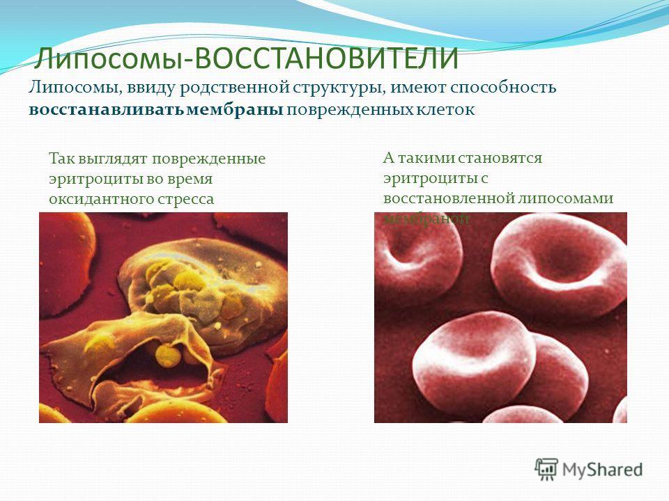 Липосомы-ВОССТАНОВИТЕЛИ Липосомы, ввиду родственной структуры, имеют способность восстанавливать мембраны поврежденных клеток Так выглядят поврежденные эритроциты во время оксидантного стресса А такими становятся эритроциты с восстановленной липосома
