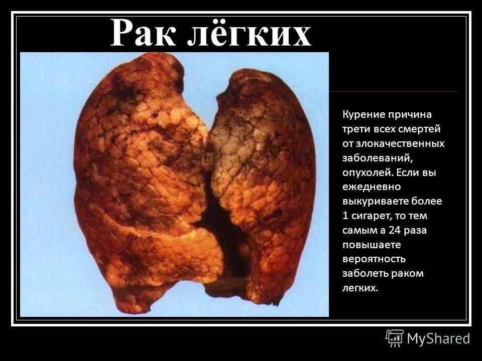 Рак лёгких Курение причина трети всех смертей от злокачественных заболеваний, опухолей. Если вы ежедневно выкуриваете более 1 сигарет, то тем самым а 24 раза повышаете вероятность заболеть раком легких.