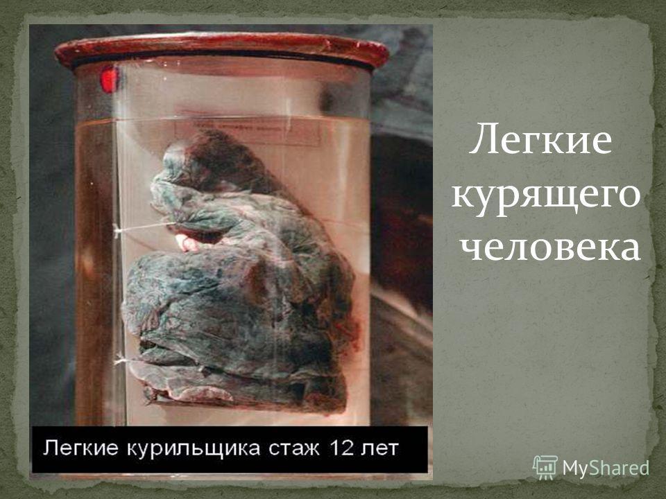 Легкие курящего человека