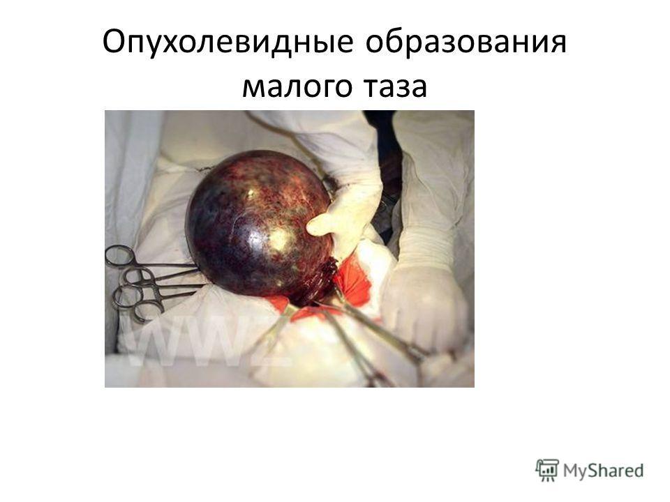 Опухолевидные образования малого таза