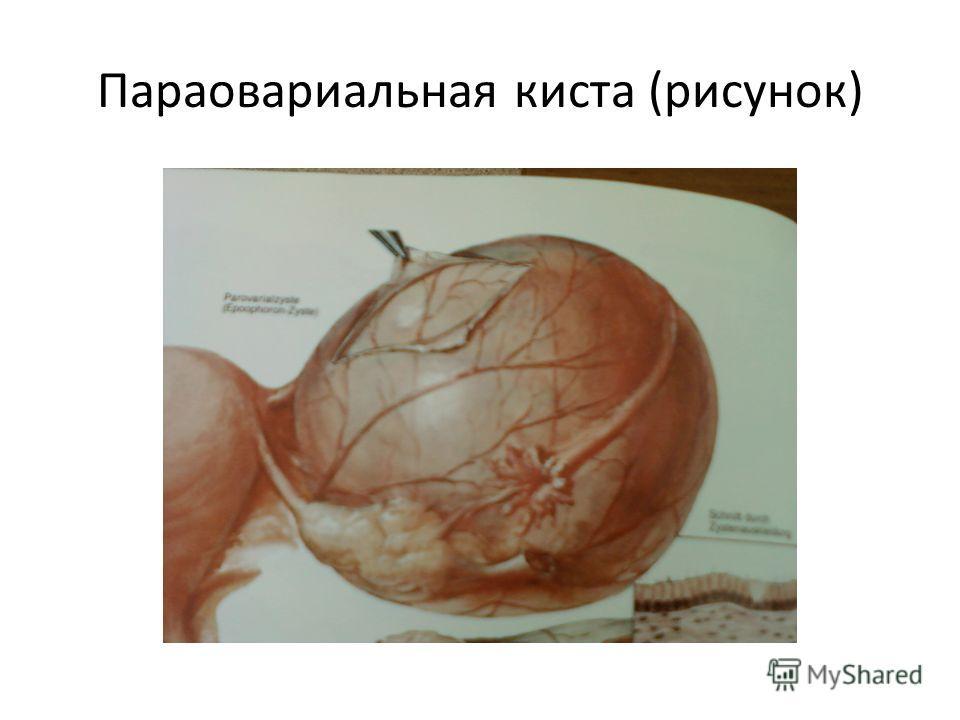 Параовариальная киста (рисунок)