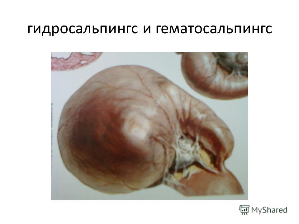 гидросальпинкс и гематосальпингс