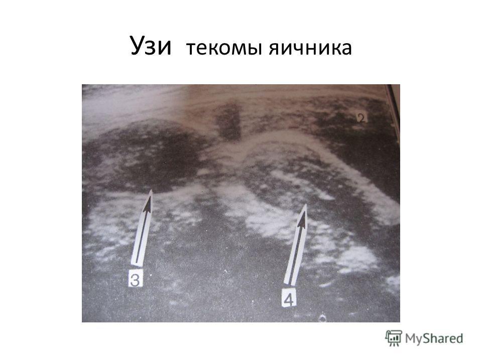 Узи текомы яичника
