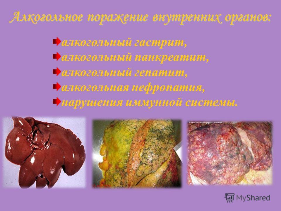 Алкогольное поражение внутренних органов: алкогольный гастрит, алкогольный панкреатит, алкогольный гепатит, алкогольная нефропатия, нарушения иммунной системы.