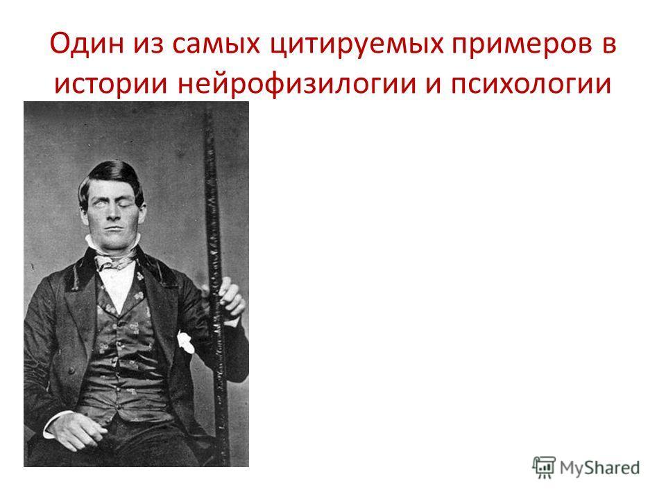 Один из самых цитируемых примеров в истории нейрофизиологии и психологии