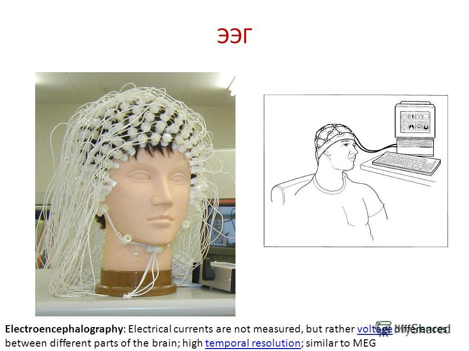 ЭЭГ Electroencephalography: Electrical currents are not measured, but rather voltage differences between different parts of the brain; high temporal resolution; similar to MEGvoltagetemporal resolution