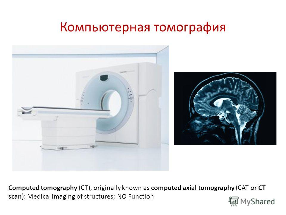 Компьютерная томография Computed tomography (CT), originally known as computed axial tomography (CAT or CT scan): Medical imaging of structures; NO Function