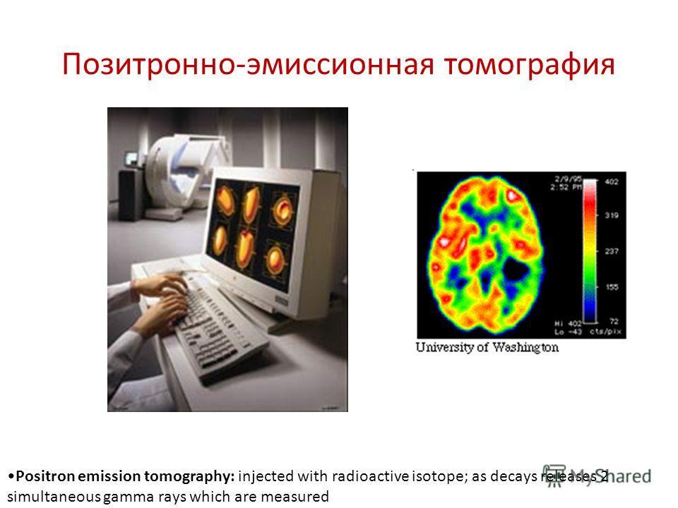 Позитронно-эмиссионная томография Positron emission tomography: injected with radioactive isotope; as decays releases 2 simultaneous gamma rays which are measured
