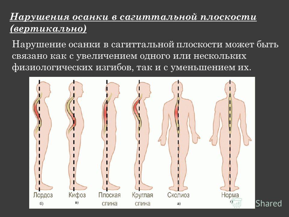 Нарушения осанки в сагиттальной плоскости (вертикально) Нарушение осанки в сагиттальной плоскости может быть связано как с увеличением одного или нескольких физиологических изгибов, так и с уменьшением их.