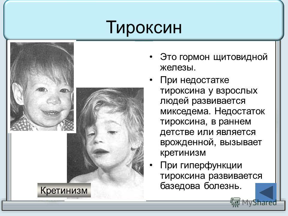 Тироксин Это гормон щитовидной железы. При недостатке тироксина у взрослых людей развивается микседема. Недостаток тироксина, в раннем детстве или является врожденной, вызывает кретинизм При гиперфункции тироксина развивается базедова болезнь. Кретин