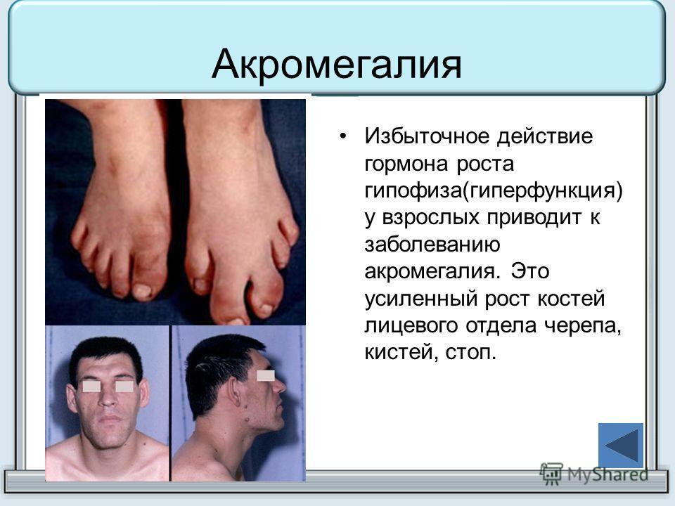 Акромегалия Избыточное действие гормона роста гипофиза(гиперфункция) у взрослых приводит к заболеванию акромегалия. Это усиленный рост костей лицевого отдела черепа, кистей, стоп.