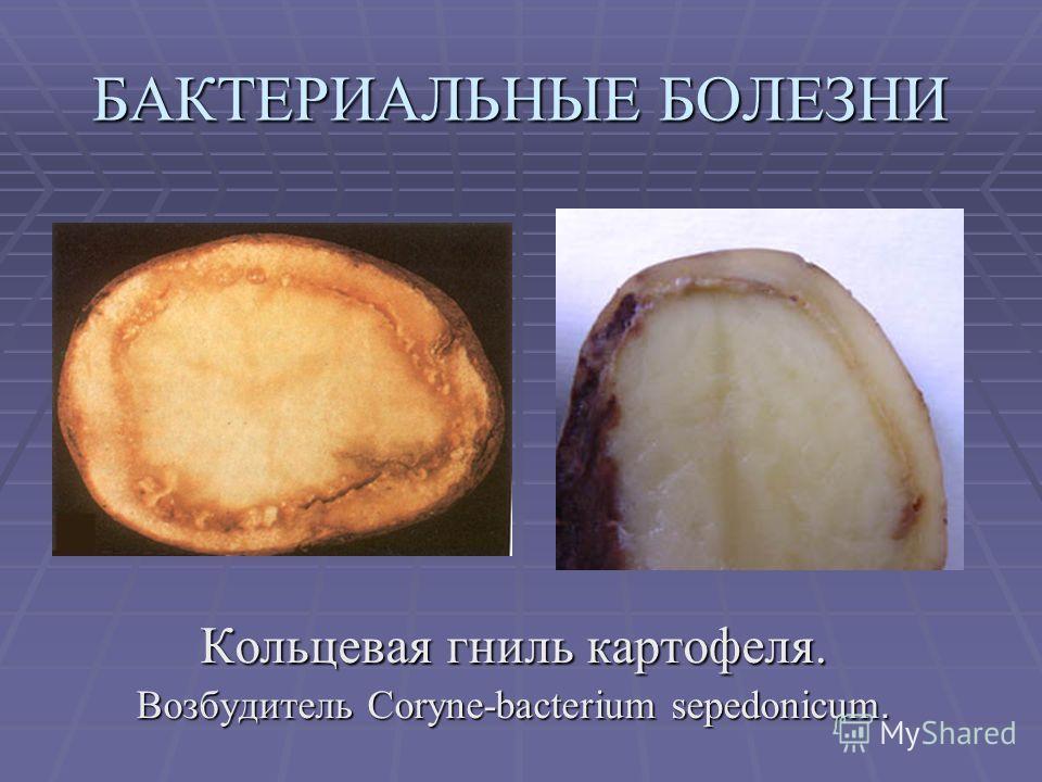 БАКТЕРИАЛЬНЫЕ БОЛЕЗНИ Кольцевая гниль картофеля. Возбудитель Coryne-bacterium sepedonicum.