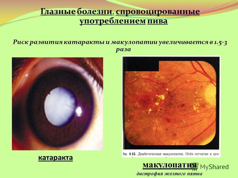 катаракта Глазные болезни, спровоцированные употреблением пива Риск развития катаракты и макулопатии увеличивается в 1.5-3 раза макулопатия дистрофия желтого пятна