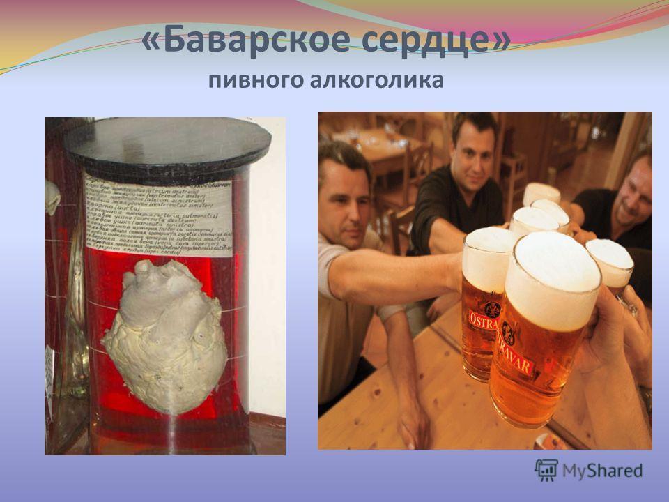 «Баварское сердце» пивного алкоголика