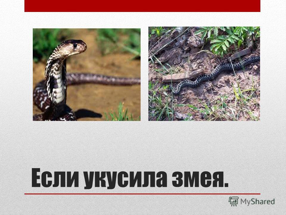 Если укусила змея.