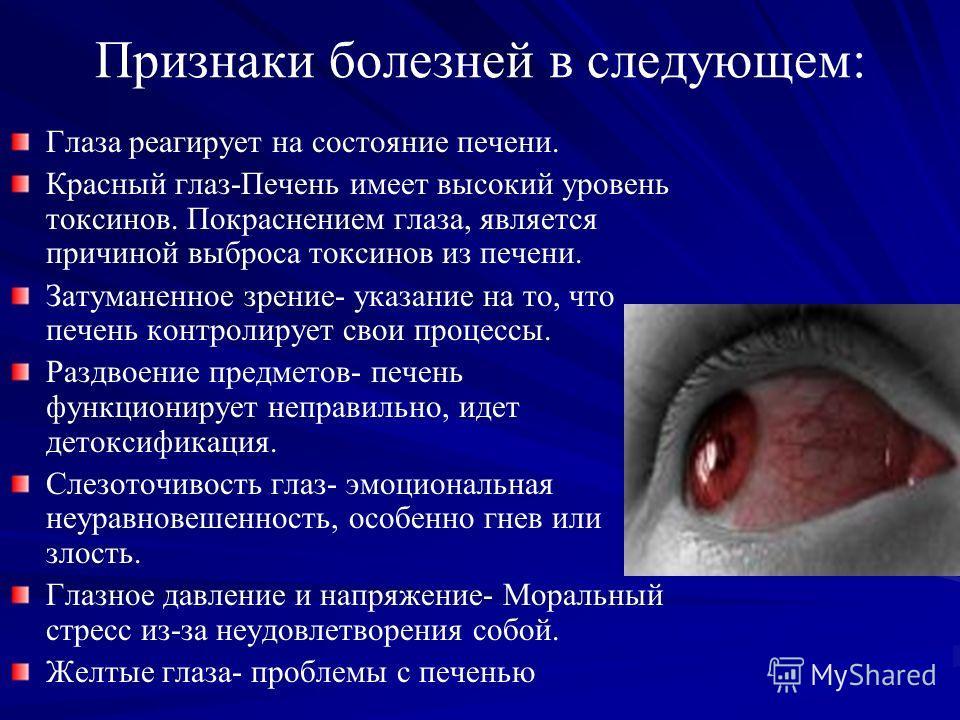 Признаки болезней в следующем: Глаза реагирует на состояние печени. Красный глаз-Печень имеет высокий уровень токсинов. Покраснением глаза, является причиной выброса токсинов из печени. Затуманенное зрение- указание на то, что печень контролирует сво