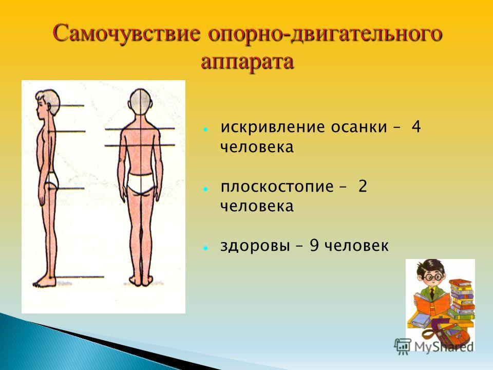 искривление осанки – 4 человека плоскостопие – 2 человека здоровы – 9 человек