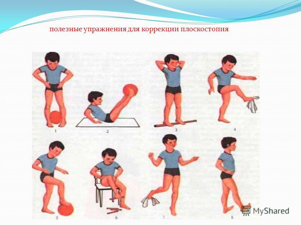 полезные упражнения для коррекции плоскостопия