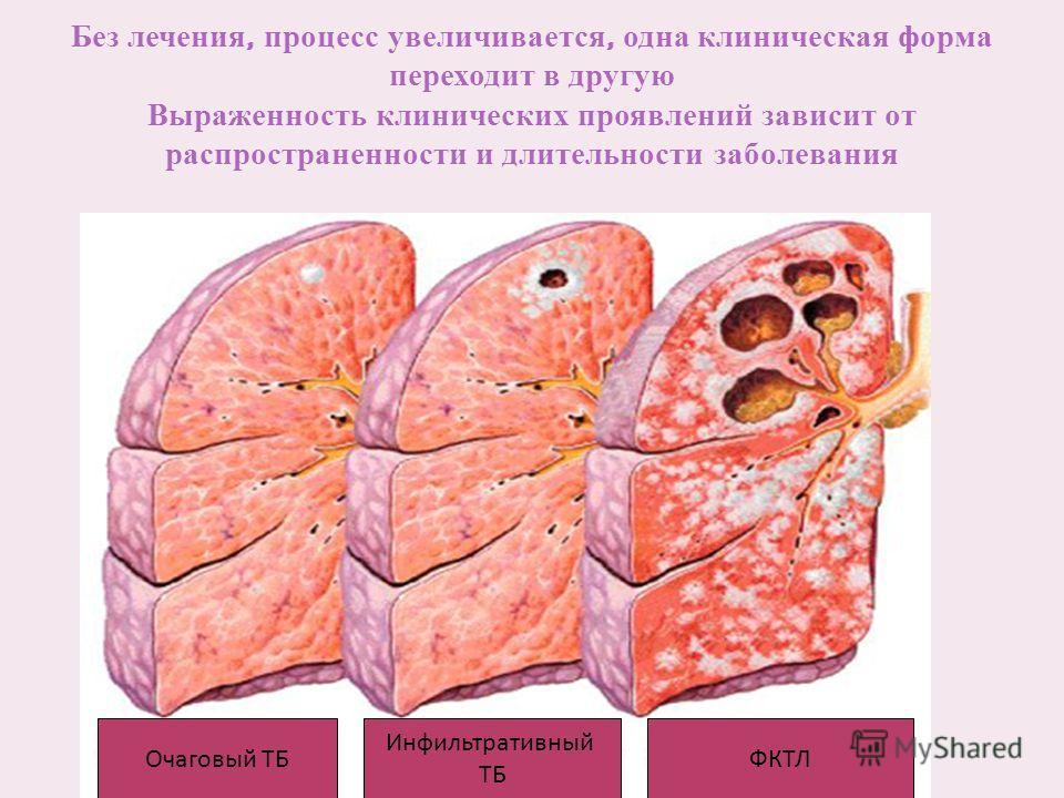 Без лечения, процесс увеличивается, одна клиническая форма переходит в другую Выраженность клинических проявлений зависит от распространенности и длительности заболевания Очаговый ТБ Инфильтративный ТБ ФКТЛ
