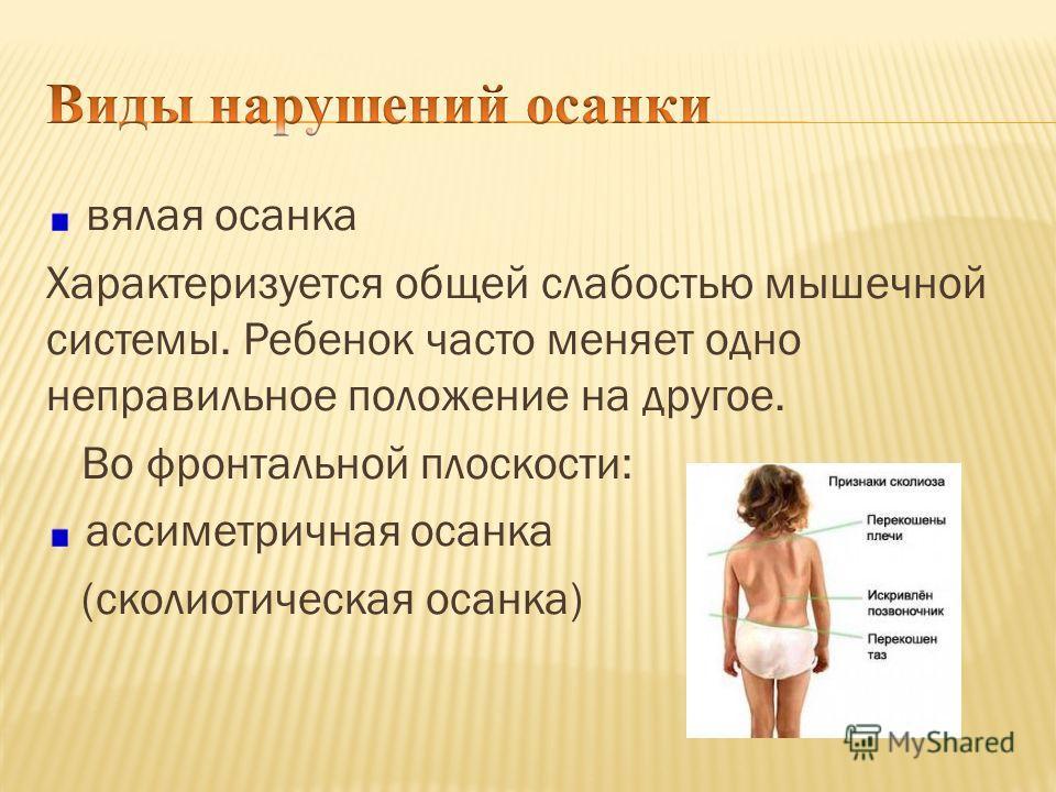 вялая осанка Характеризуется общей слабостью мышечной системы. Ребенок часто меняет одно неправильное положение на другое. Во фронтальной плоскости: ассиметричная осанка (сколиотическая осанка)