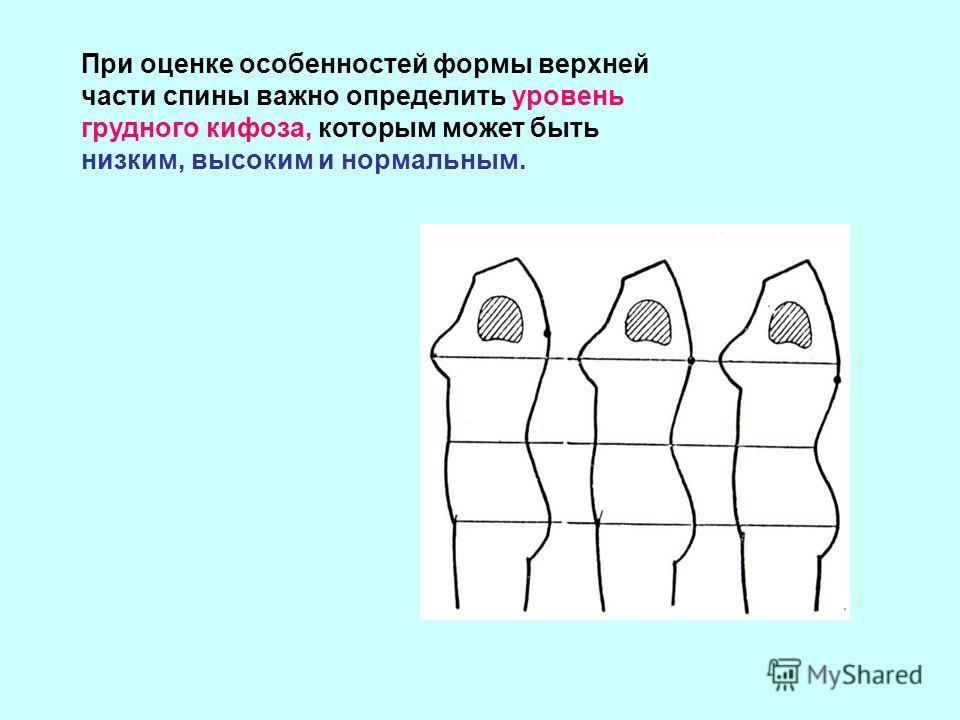 При оценке особенностей формы верхней части спины важно определить уровень грудного кифоза, которым может быть низким, высоким и нормальным.