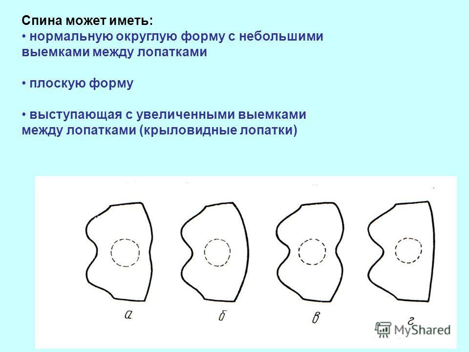 Спина может иметь: нормальную округлую форму с небольшими выемками между лопатками плоскую форму выступающая с увеличенными выемками между лопатками (крыловидные лопатки)