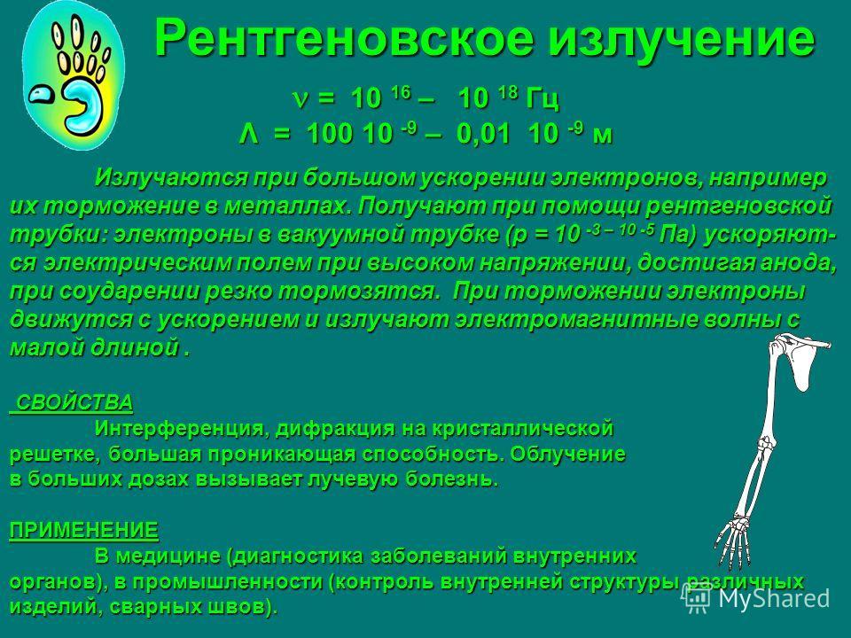 Рентгеновское излучение Рентгеновское излучение = 10 16 – 10 18 Гц = 10 16 – 10 18 Гц Λ = 100 10 -9 – 0,01 10 -9 м Излучаются при большом ускорении электронов, например их торможение в металлах. Получают при помощи рентгеновской трубки: электроны в в