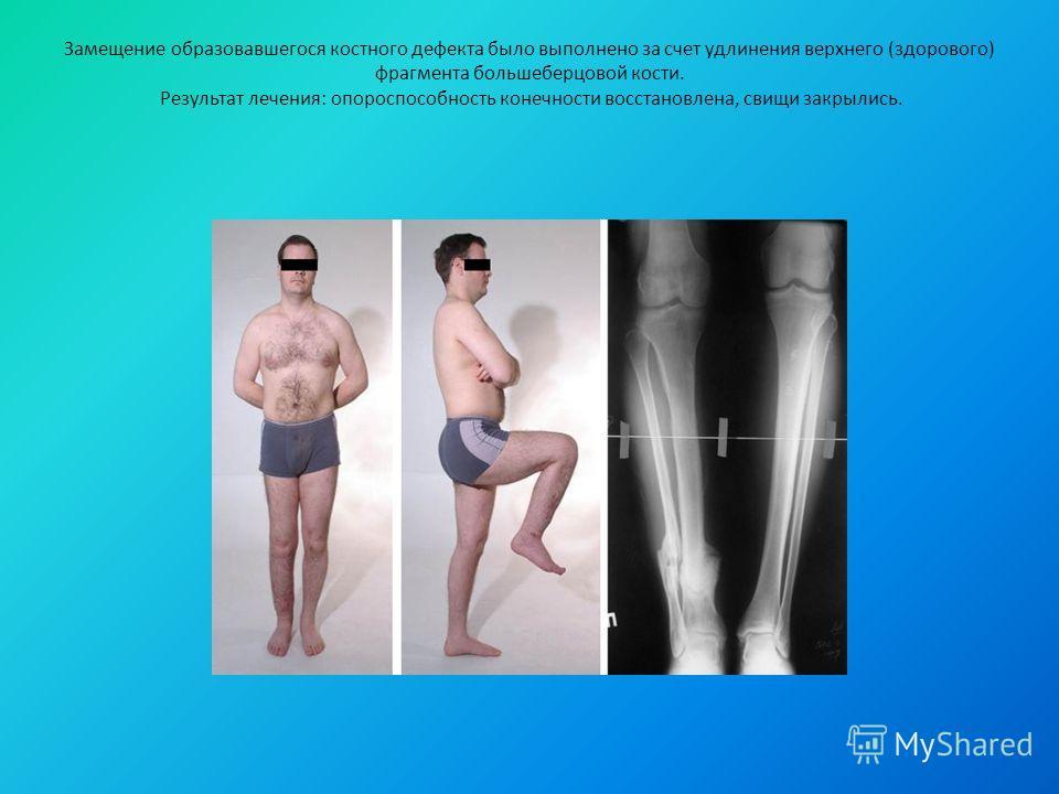 Замещение образовавшегося костного дефекта было выполнено за счет удлинения верхнего (здорового) фрагмента большеберцовой кости. Результат лечения: опороспособность конечности восстановлена, свищи закрылись.