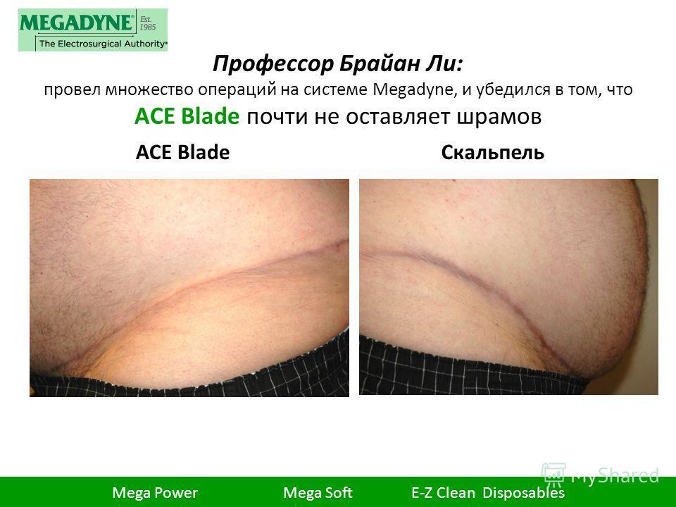 Профессор Брайан Ли: провел множество операций на системе Megadyne, и убедился в том, что ACE Blade почти не оставляет шрамов ACE Blade Скальпель Mega Power Mega Soft E-Z Clean Disposables