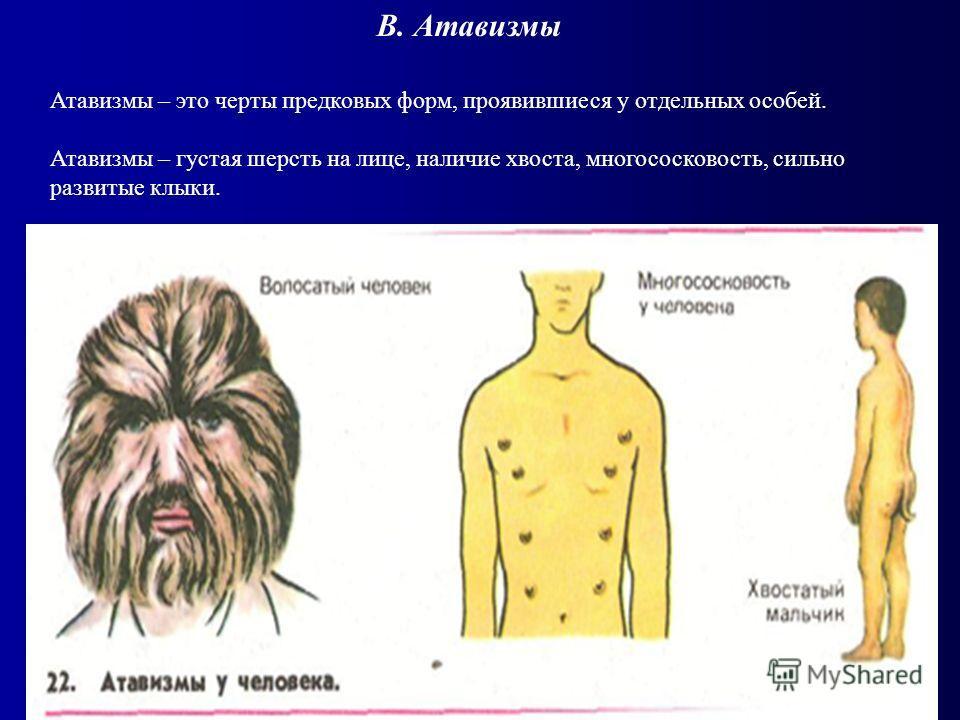 Атавизмы – это черты предковых форм, проявившиеся у отдельных особей. Атавизмы – густая шерсть на лице, наличие хвоста, многососковость, сильно развитые клыки. В. Атавизмы