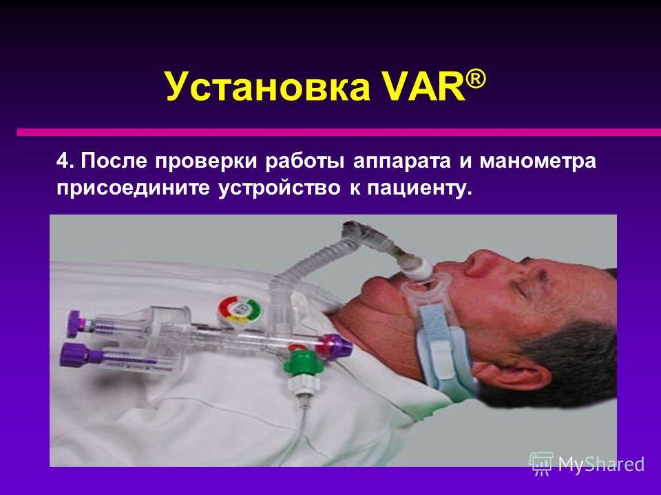 Установка VAR ® 3. После поступления потока к устройству, зажмите рукой разъём для присоединения к пациенту с целью проверки правильной работы VAR ®. Стрелка цветного манометра должна двигаться.