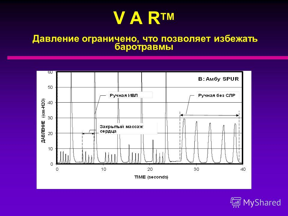 V A R TM Aвтоматически переключается с вдоха на выдох в конце каждого cжатия