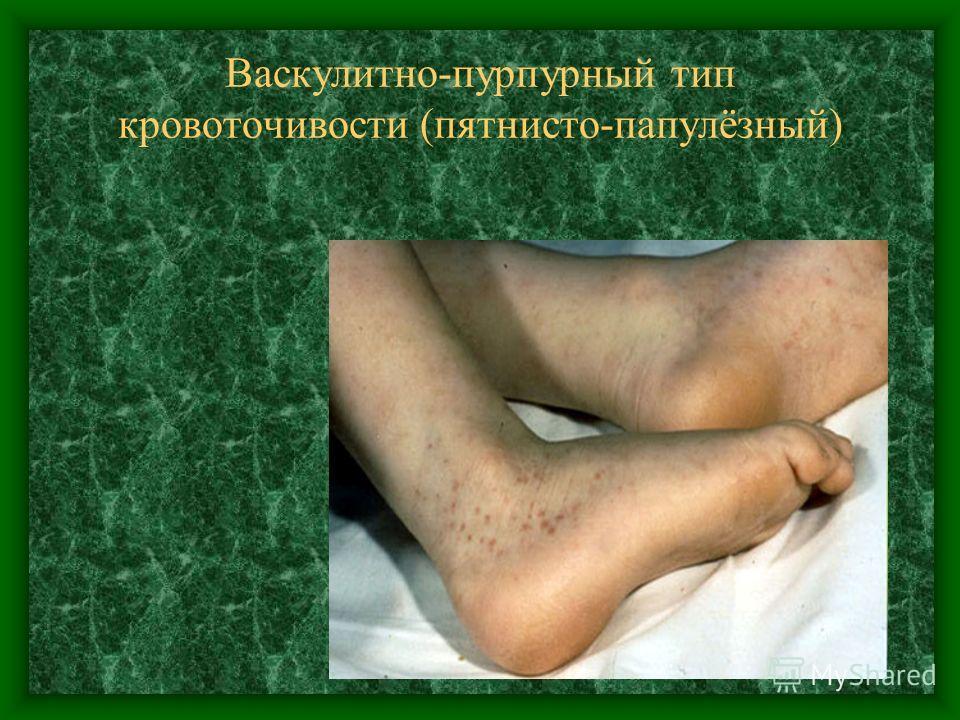 Васкулитно-пурпурный тип кровоточивости (пятнисто-папулёзный)