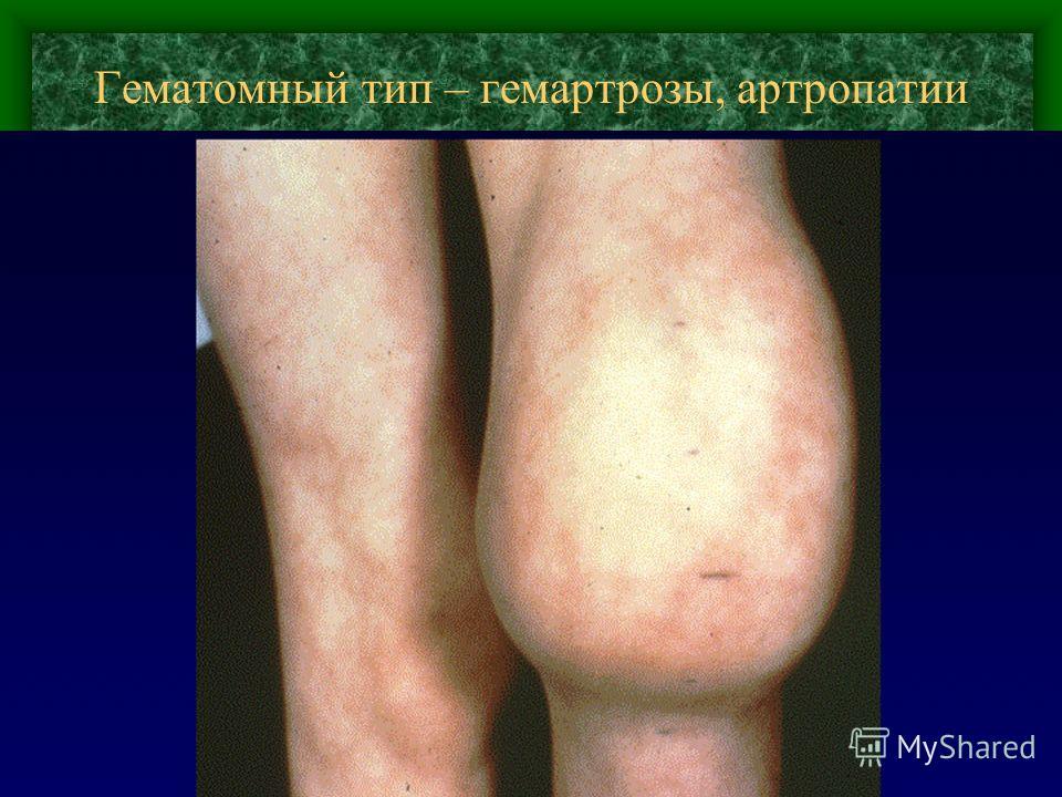 Гематомный тип – гемартрозы, артропатии