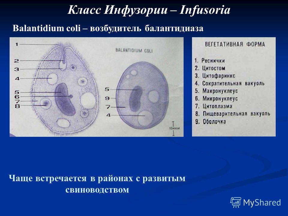 Класс Инфузории – Infusoria Balantidium coli – возбудитель балантидиаза Чаще встречается в районах с развитым свиноводством