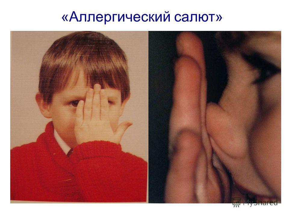 «Аллергический салют»